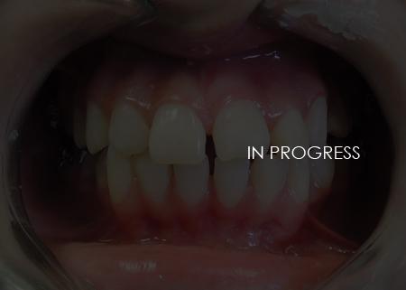La Couronne Dental
